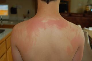 proper sunburn