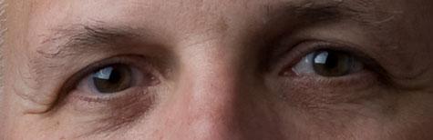 eye-closeup